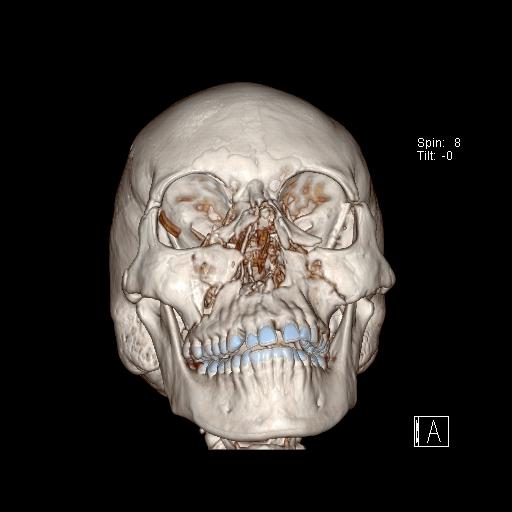 Pre-op CT scan Dr Libby Calton